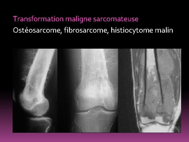 Transformation maligne sarcomateuse Ostéosarcome, fibrosarcome, histiocytome malin
