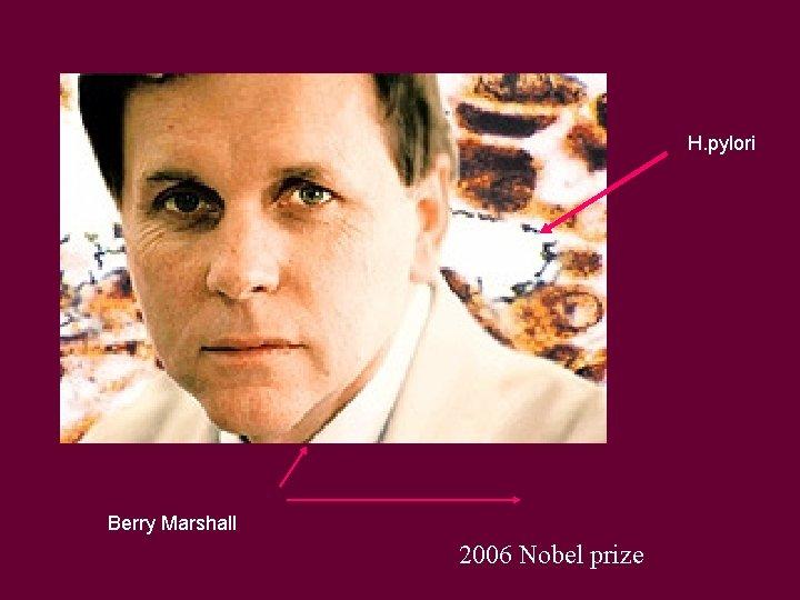 H. pylori Berry Marshall 2006 Nobel prize