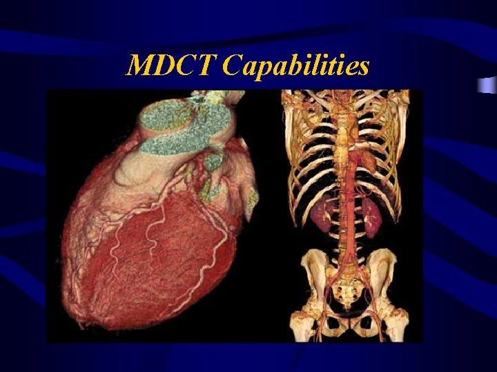 MDCT Capabilities