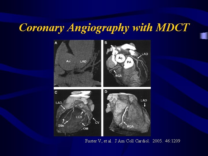 Coronary Angiography with MDCT Fuster V, et al. J Am Coll Cardiol. 2005. 46: