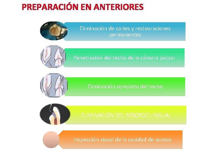 PREPARACIÓN EN ANTERIORES Eliminación de caries y restauraciones permanentes Penetración del techo de la