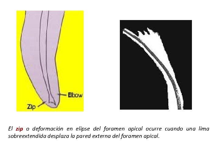 El zip o deformación en elipse del foramen apical ocurre cuando una lima sobreextendida