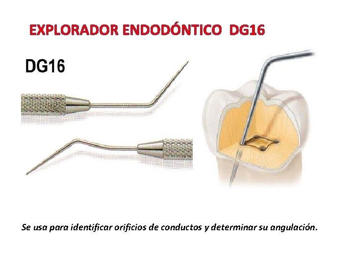 EXPLORADOR ENDODÓNTICO DG 16 Se usa para identificar orificios de conductos y determinar su