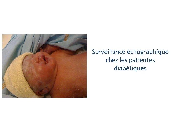 Surveillance échographique chez les patientes diabétiques