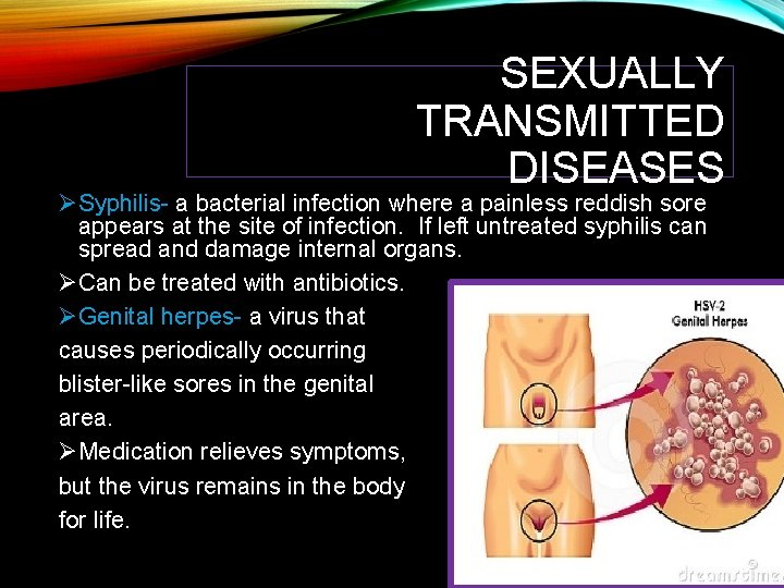 SEXUALLY TRANSMITTED DISEASES ØSyphilis- a bacterial infection where a painless reddish sore appears at