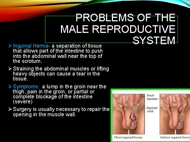 PROBLEMS OF THE MALE REPRODUCTIVE SYSTEM Ø Inguinal Hernia- a separation of tissue that