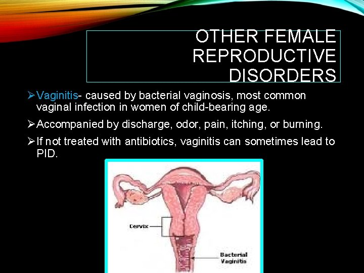 OTHER FEMALE REPRODUCTIVE DISORDERS ØVaginitis- caused by bacterial vaginosis, most common vaginal infection in