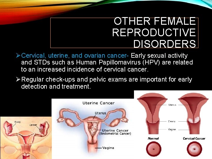 OTHER FEMALE REPRODUCTIVE DISORDERS ØCervical, uterine, and ovarian cancer- Early sexual activity and STDs