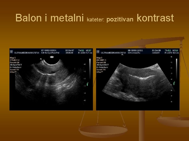 Balon i metalni kateter: pozitivan kontrast
