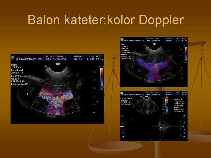Balon kateter: kolor Doppler