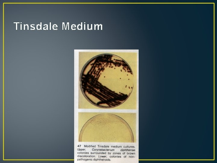 Tinsdale Medium