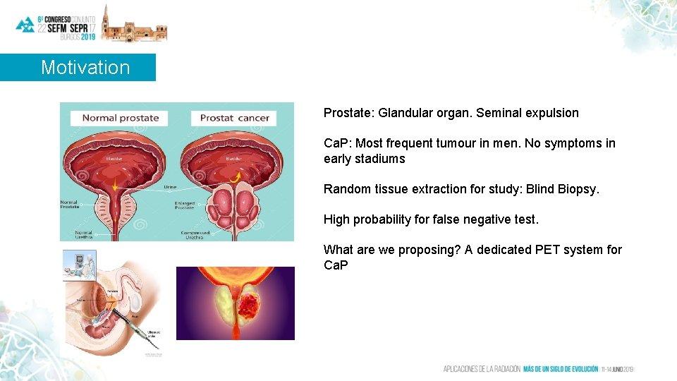 Motivation Prostate: Glandular organ. Seminal expulsion Ca. P: Most frequent tumour in men. No