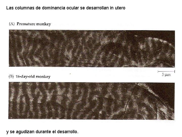 Las columnas de dominancia ocular se desarrollan in utero y se agudizan durante el