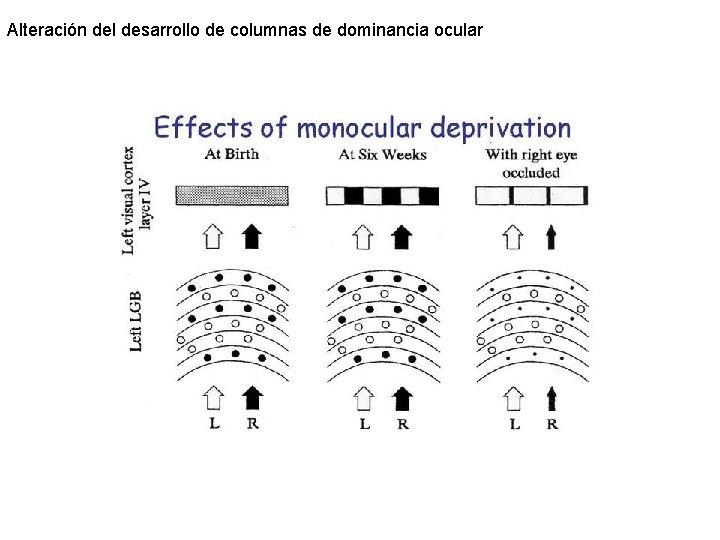 Alteración del desarrollo de columnas de dominancia ocular