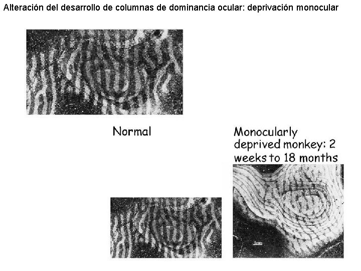 Alteración del desarrollo de columnas de dominancia ocular: deprivación monocular