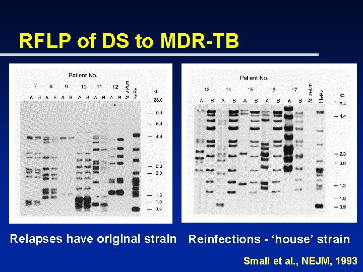 RFLP of DS to MDR-TB Relapses have original strain Reinfections - 'house' strain Small
