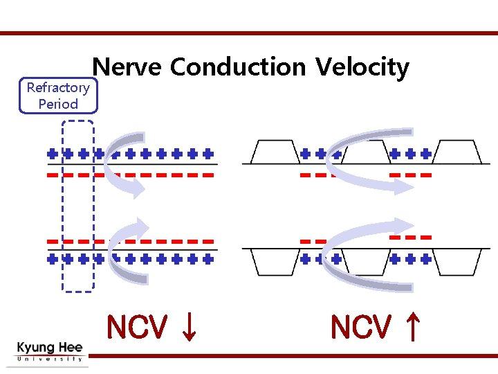 Refractory Period Nerve Conduction Velocity NCV ↓ NCV ↑