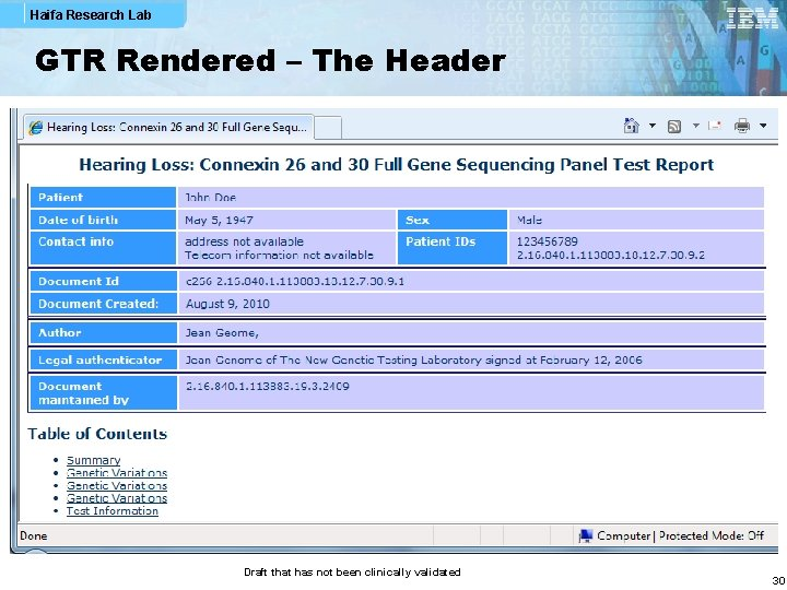 Haifa Research Lab GTR Rendered – The Header Draft that has not been clinically