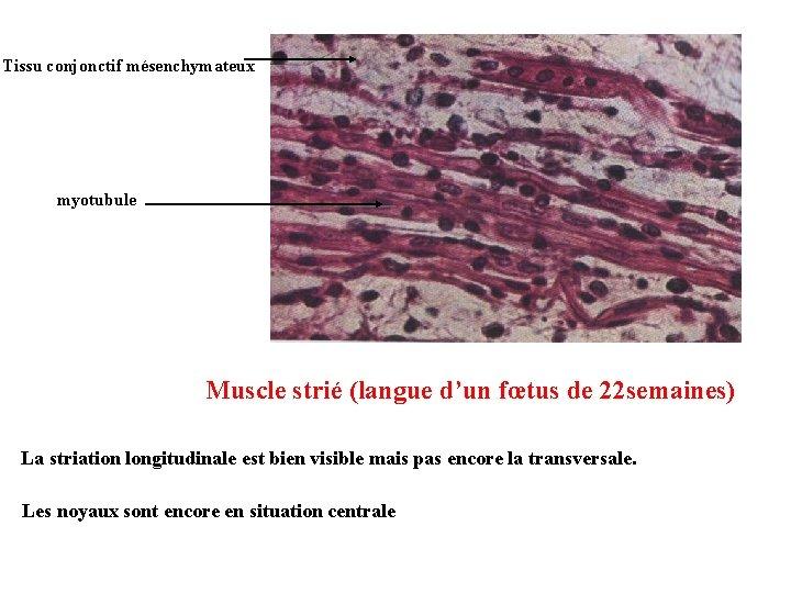Tissu conjonctif mésenchymateux myotubule Muscle strié (langue d'un fœtus de 22 semaines) La striation