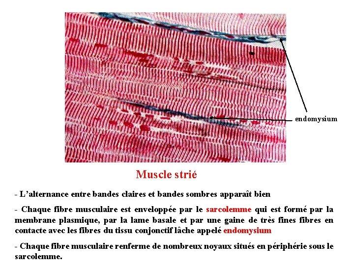 endomysium Muscle strié - L'alternance entre bandes claires et bandes sombres apparaît bien -