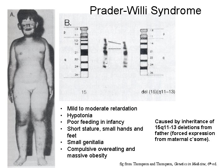 Prader-Willi Syndrome • • Mild to moderate retardation Hypotonia Poor feeding in infancy Short