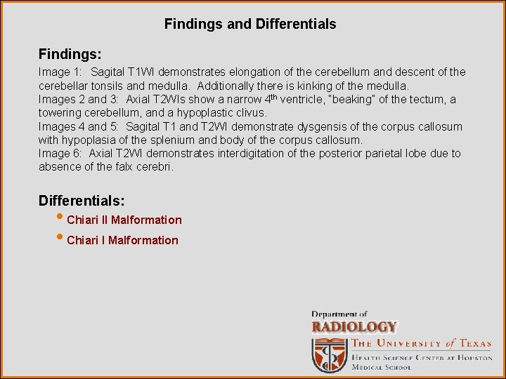 Findings and Differentials Findings: Image 1: Sagital T 1 WI demonstrates elongation of the