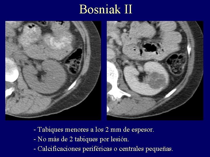 Bosniak II - Tabiques menores a los 2 mm de espesor. - No más
