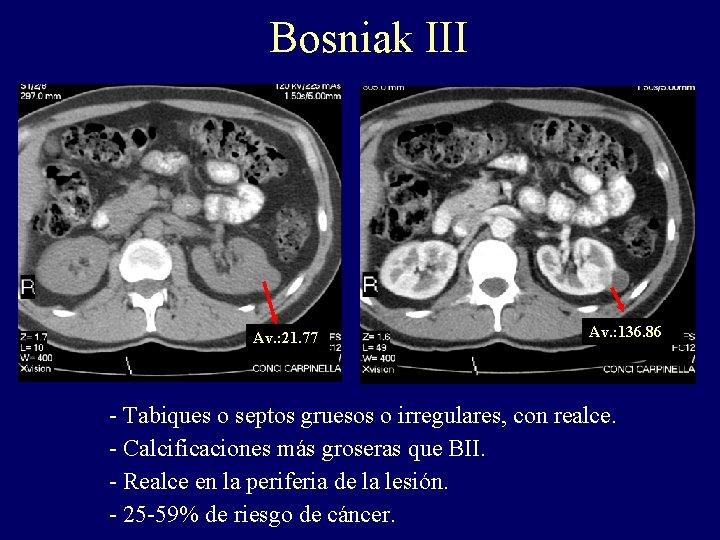Bosniak III Av. : 21. 77 Av. : 136. 86 - Tabiques o septos