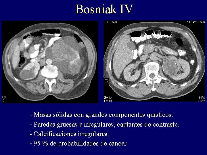 Bosniak IV - Masas sólidas con grandes componentes quísticos. - Paredes gruesas e irregulares,