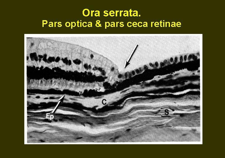 Ora serrata. Pars optica & pars ceca retinae