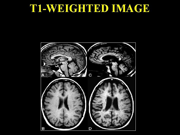 T 1 -WEIGHTED IMAGE In the figure below, patient on the left is a