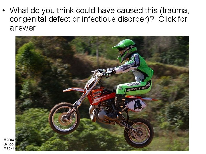 • What do you think could have caused this (trauma, congenital defect or