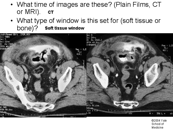 • What time of images are these? (Plain Films, CT or MRI). CT