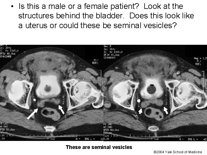 • Is this a male or a female patient? Look at the structures