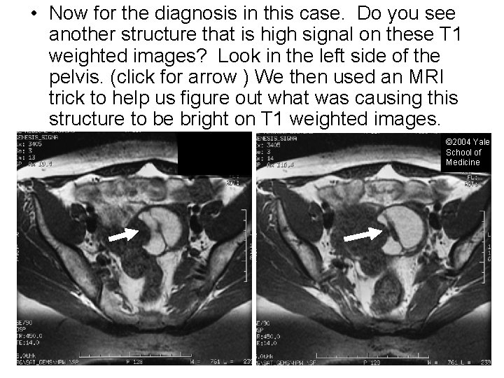 • Now for the diagnosis in this case. Do you see another structure