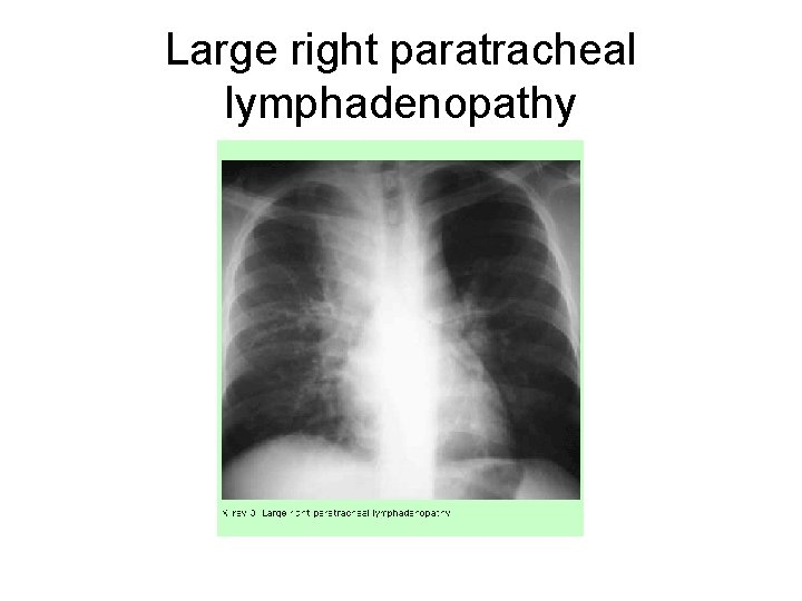 Large right paratracheal lymphadenopathy