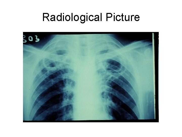 Radiological Picture