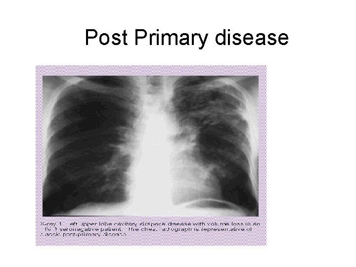 Post Primary disease