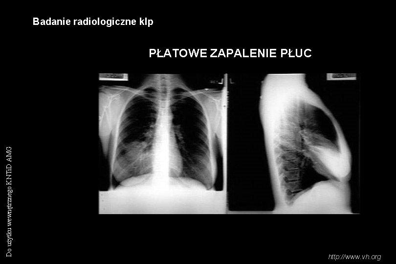 Badanie radiologiczne klp Do użytku wewnętrznego KNTi. D AMG PŁATOWE ZAPALENIE PŁUC http: //www.