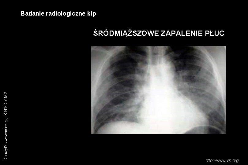 Badanie radiologiczne klp Do użytku wewnętrznego KNTi. D AMG ŚRÓDMIĄŻSZOWE ZAPALENIE PŁUC http: //www.