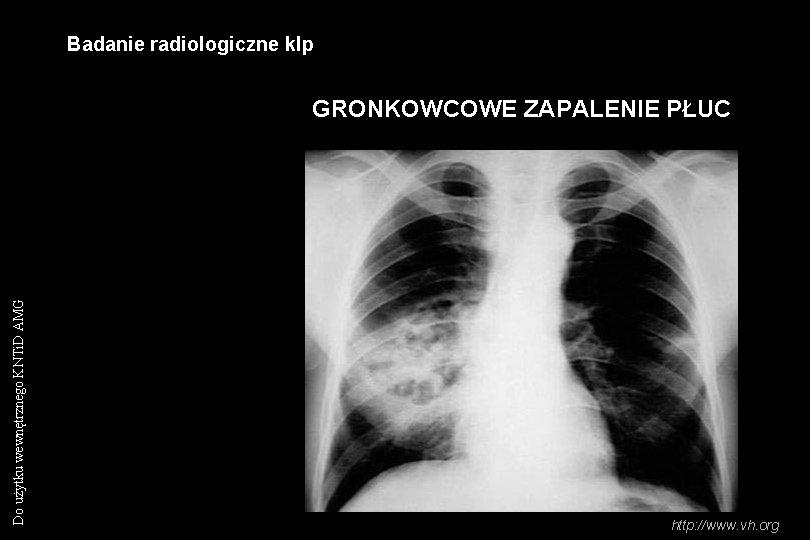 Badanie radiologiczne klp Do użytku wewnętrznego KNTi. D AMG GRONKOWCOWE ZAPALENIE PŁUC http: //www.