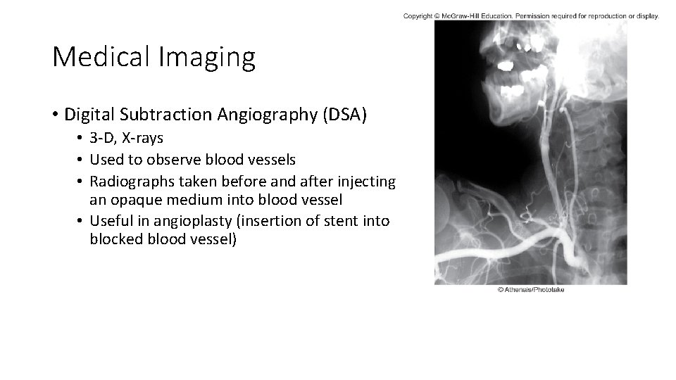 Medical Imaging • Digital Subtraction Angiography (DSA) • 3 -D, X-rays • Used to