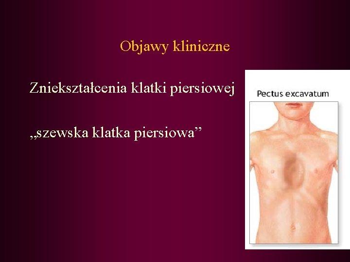 """Objawy kliniczne Zniekształcenia klatki piersiowej """"szewska klatka piersiowa"""""""