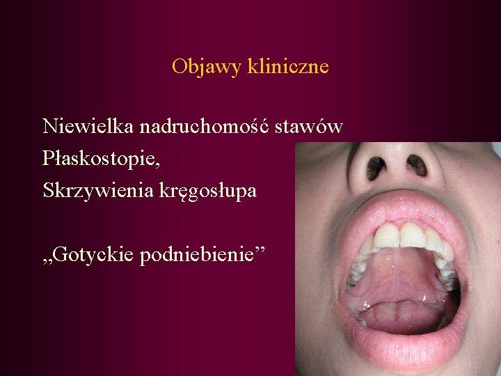 """Objawy kliniczne Niewielka nadruchomość stawów Płaskostopie, Skrzywienia kręgosłupa """"Gotyckie podniebienie"""""""