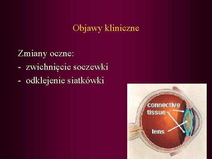 Objawy kliniczne Zmiany oczne: - zwichnięcie soczewki - odklejenie siatkówki
