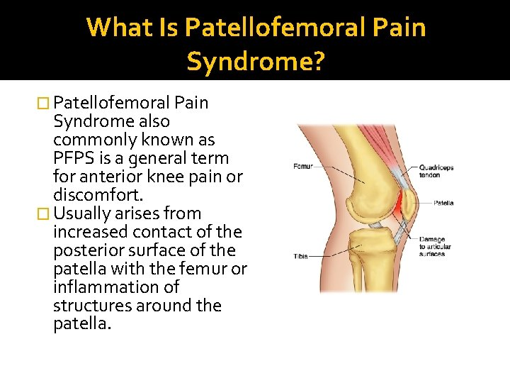 What Is Patellofemoral Pain Syndrome? � Patellofemoral Pain Syndrome also commonly known as PFPS