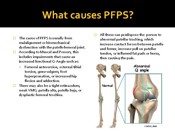 What causes PFPS? The cause of PFPS is usually from malalignment or biomechanical dysfunction