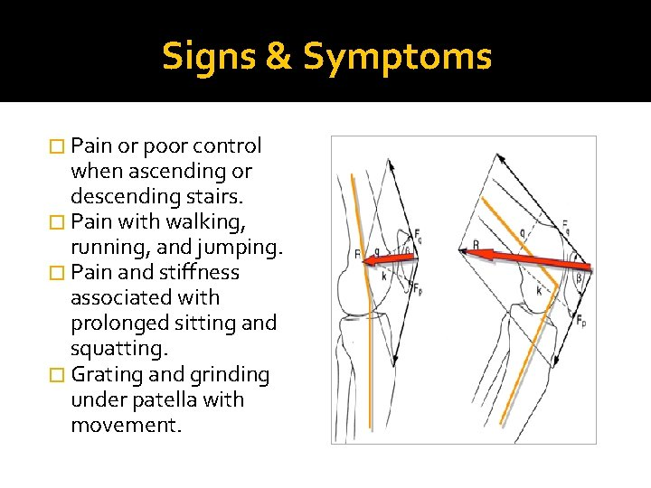 Signs & Symptoms � Pain or poor control when ascending or descending stairs. �