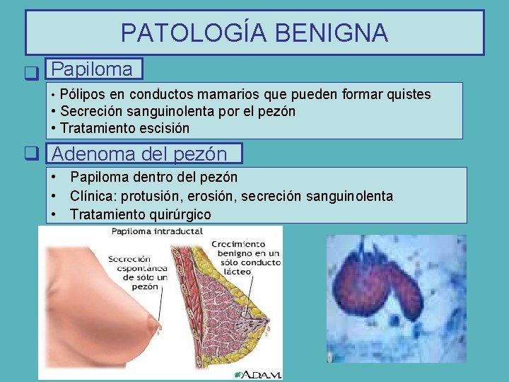 papiloma intraductal de mama)