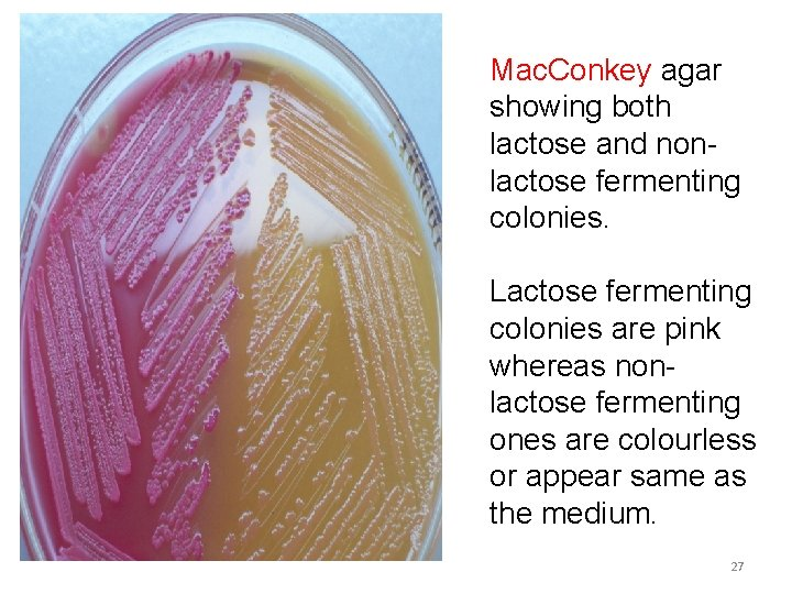 Mac. Conkey agar showing both lactose and nonlactose fermenting colonies. Lactose fermenting colonies are